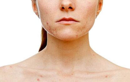 4 Most Dangerous Skin Conditions and their Treatments