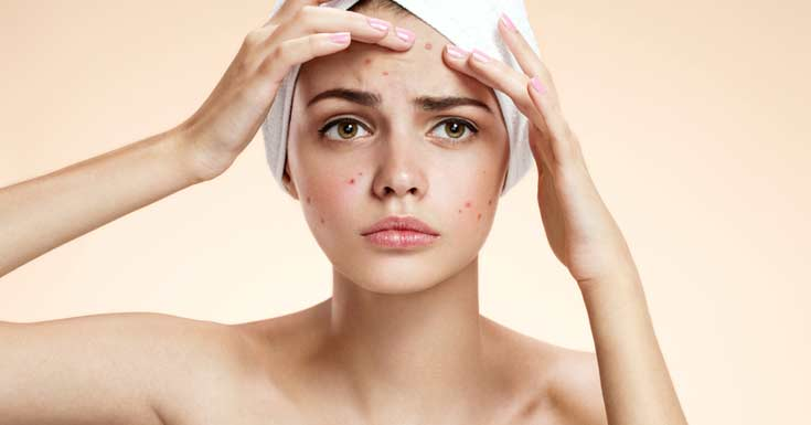 Zinc as Mineral Can Aid In the Fight against Acne