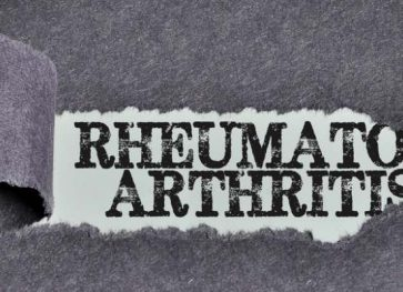 Get Incredible 3 Homemade Tips For Rheumatoid Arthritis