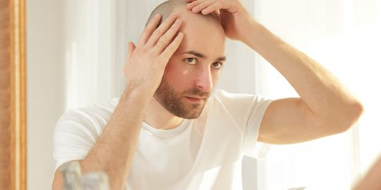 Hair Baldness Treatment – Restore Your Hair and Your Confidence