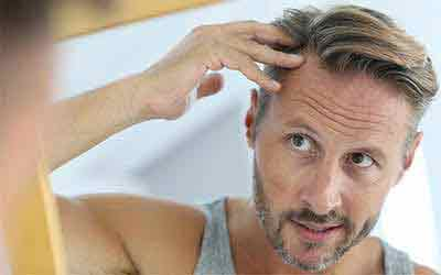 A cheap way to put an end to male pattern baldness