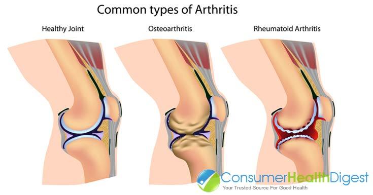 Common Types Of Arthritis Pain