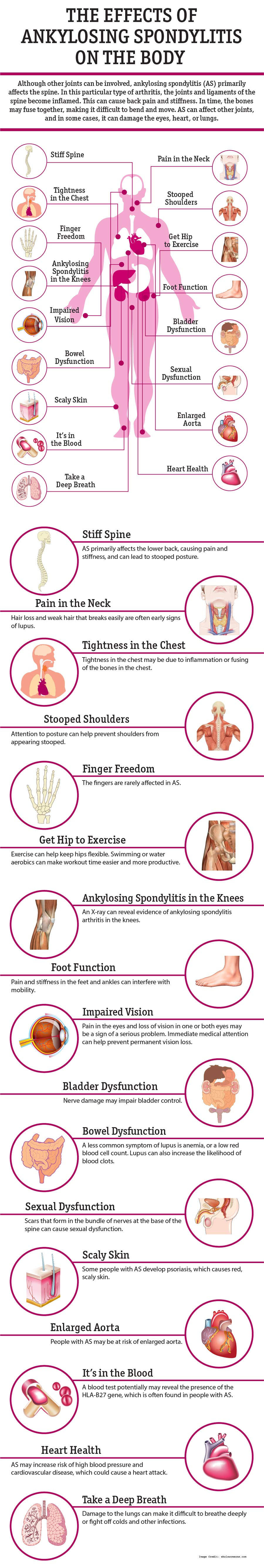 Ankylosing Spondylitis Info