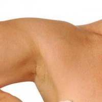 Arm Cellulite