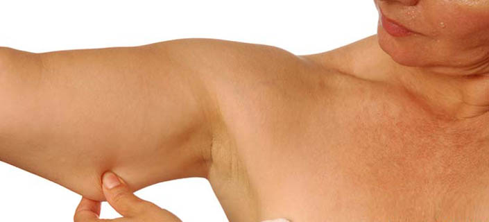 Arm Cellulite How To Get Rid Of It