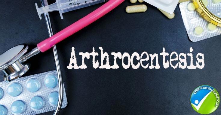 Diagnose Rheumatoid Arthritis
