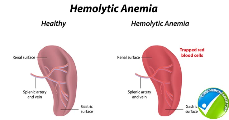 hemolytic anemia: causes, signs, diagnosis and treatment, Skeleton