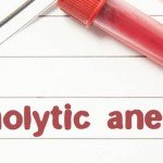 Hemolytic Anemia: Causes, Signs, Diagnosis and Treatment