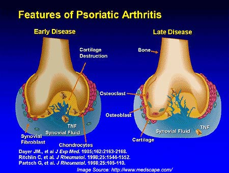 Psoriasis is the most common autoimmune disease, and an important manifestation of psoriatic arthritis in patients with joint pain 3