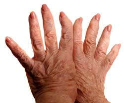 What is schleroderma?