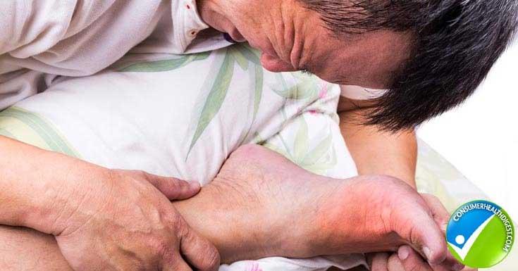 Swellen Gout