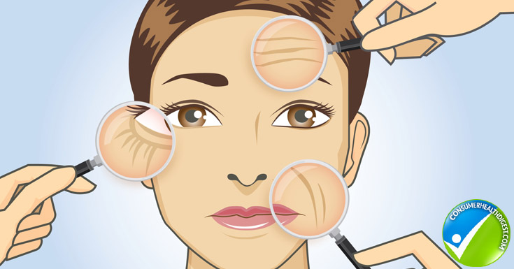 Causes of Fine Lines