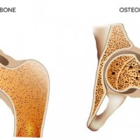 Osteoporosis Facts