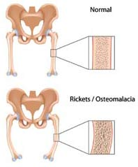 osteomalacia: causes, symptoms, expert views, diagnosis and treatments, Skeleton