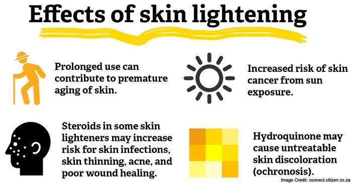 Skin Lightening Info