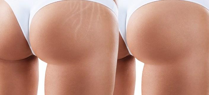 Stretch Marks On Buttocks