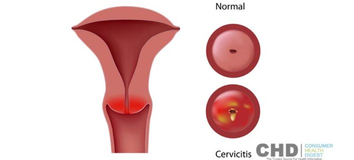 symptom vaginal infection bacterial