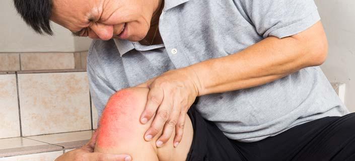 Arthritis Symptoms - Taking A Closer Look