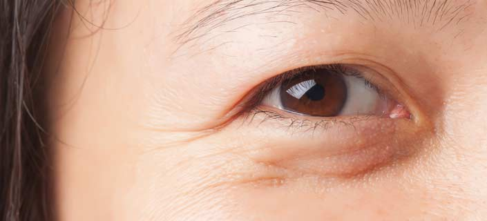 Bags under the eyes causes treatments to reduce under eye bags bags under eyes ccuart Images