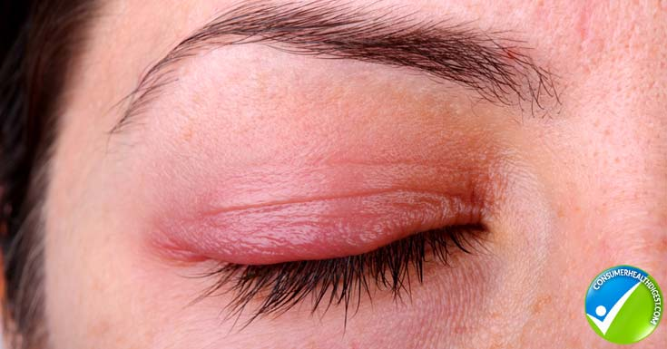 Natural Care For Red Itchy Eyes