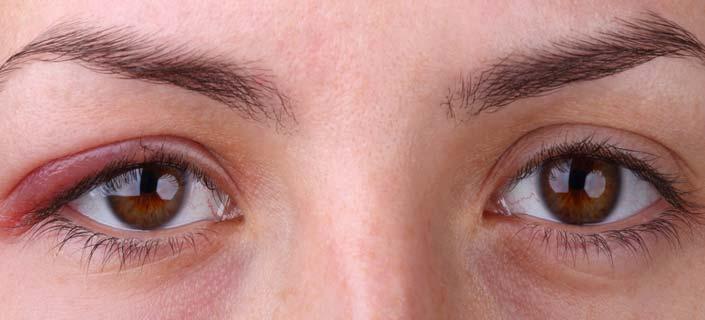 Flaky Eye Skin