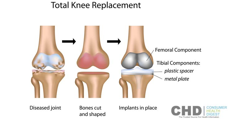 Is Knee Replacement Surgery An Answer To My Arthritis Pain?