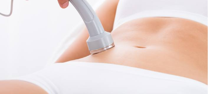 Laser Treatment Effective For Stretch Marks