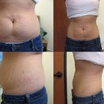 Lipodissolve: How Effective Is This Treatment Is?
