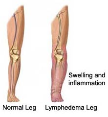 Water Retention and Lymphedema