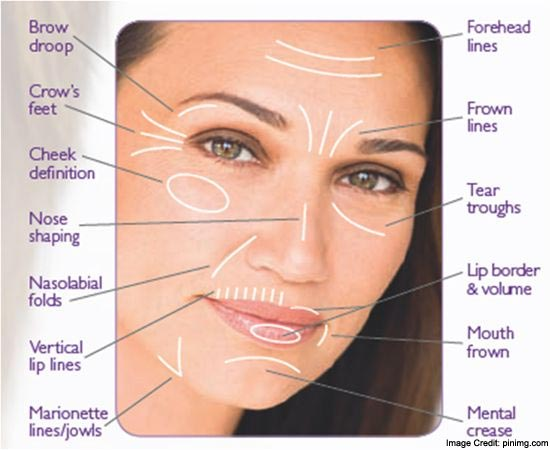 Nasolabial Folds facts