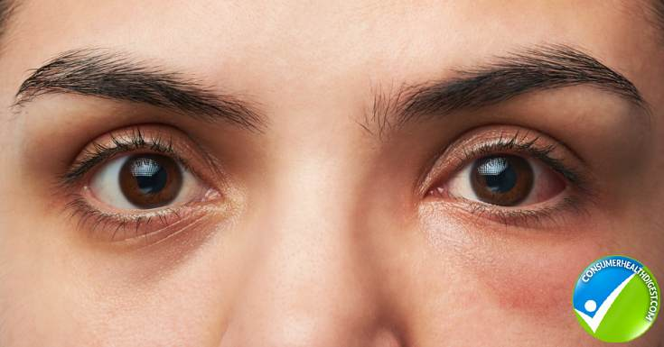 Signs and Symptoms of Swollen Eyes