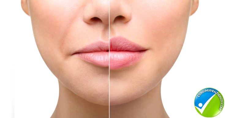 Thin Lips Vs. Full Lips