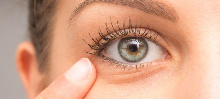 Under Eye Skin Redness