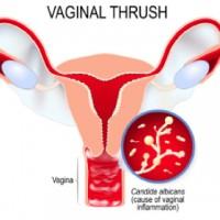 Vaginal Thrush