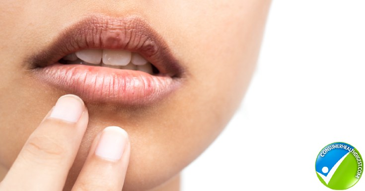 What Causes Chapped Lips