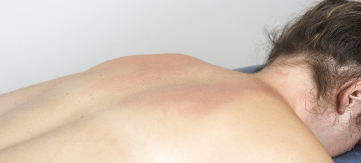 are Stretch Marks On Back Permanent