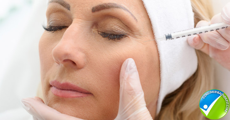 Botox can be used to soften lines