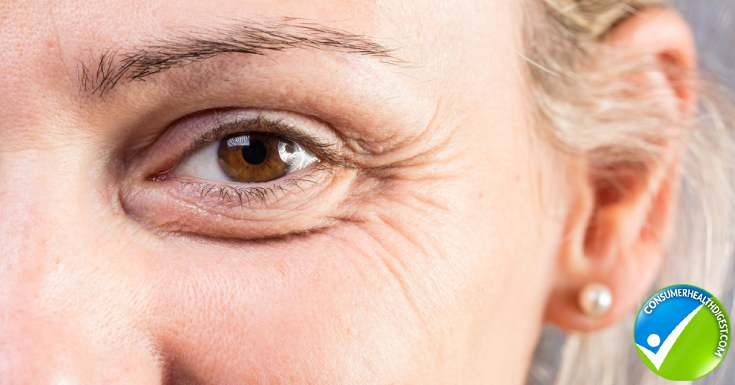 Causes of Under Eye Wrinkles