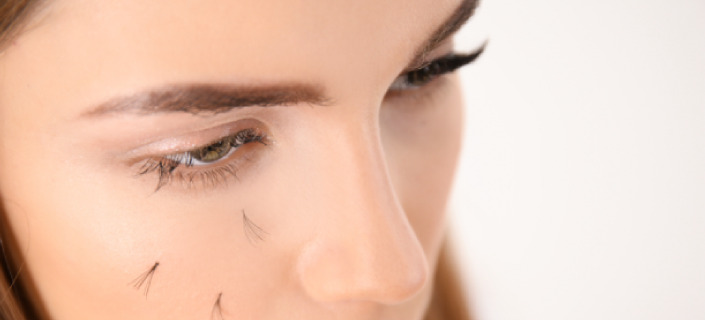 Causes & Treatment Of Eyelashes Loss
