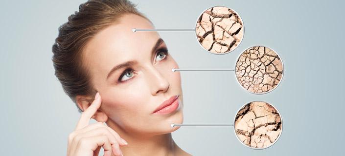 dry-skin-wrinkles