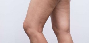 Get Rid of Cellulite on My Legs