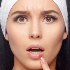 Lip Licking Dermatitis