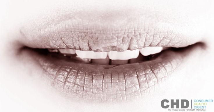 Lip lines