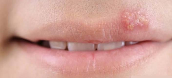 Lip Disorders
