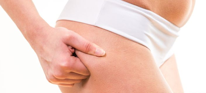 Rid Of Cellulite Dimples On the Buttocks