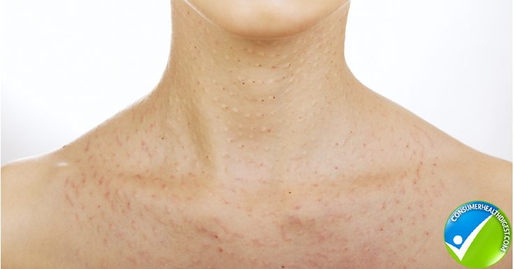 Signs and Symptoms of Rosacea on the Neck Area
