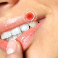 Treat Cold Sore