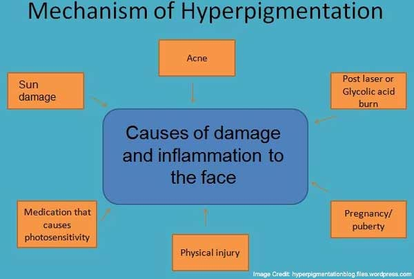 Causes of Hyperpigmentation