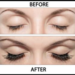 Eyelashes Grow Back After They Fall Out?