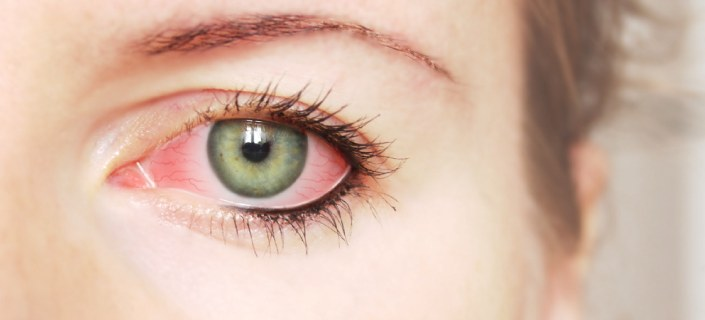 Eye Infection – Symptoms, Types and Treatment